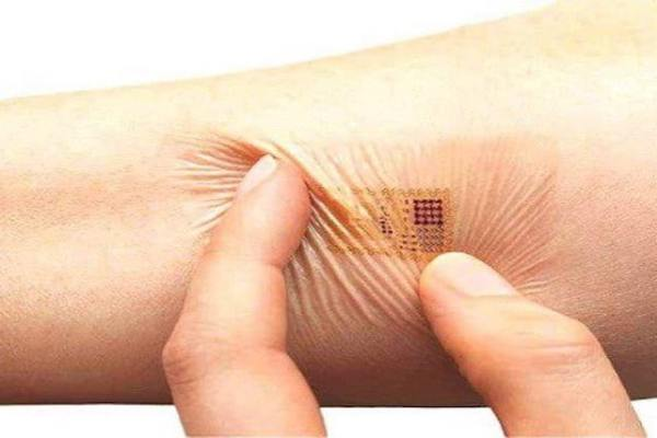 Hands up who wants a microchip in their arm